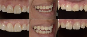 Before and After of composite bonding on teeth #08, 07, and 09 (left to right).  Each restoration used 3-5 different shades and translucencies of composites and tints.